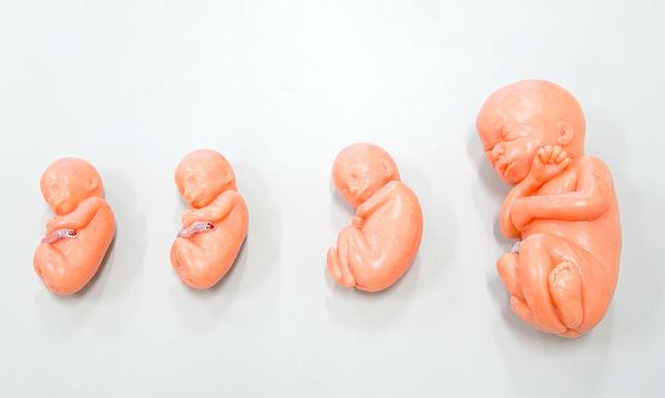 Έτσι αναπτύσσεται το έμβρυο μήνα με το μήνα μέσα στη μήτρα (vid)