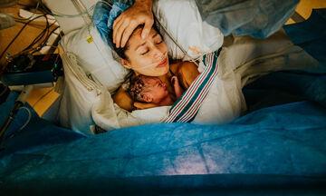 Αυτές οι φωτογραφίες καισαρικής τομής δείχνουν ότι το κορμί μιας γυναίκας αντέχει τα πάντα (pics)