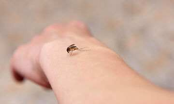 Τσίμπημα από κουνούπι; 5 τρόποι για να το αντιμετωπίσετε (pics)