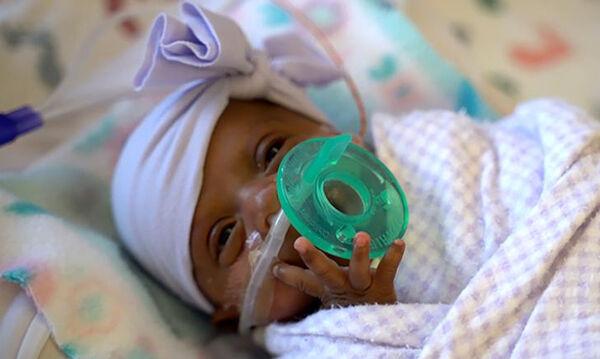 Γνωρίστε την Saybie, το μικρότερο μωρό που έχει γεννηθεί ποτέ (vid)